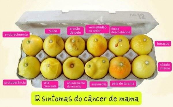 sintomas-câncer-de-mama